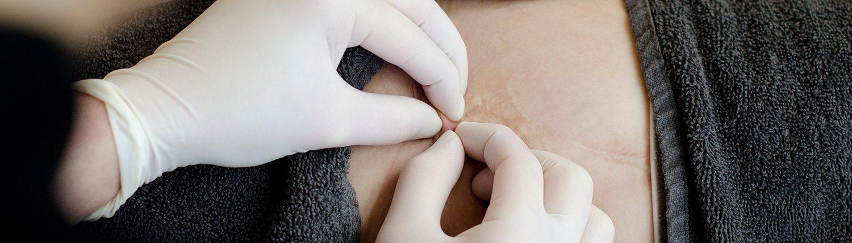 JustSkin | Amsterdam litteken reductietherapie
