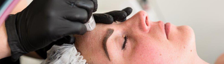 Acne behandeling Just Skin Amsterdam Megapeel