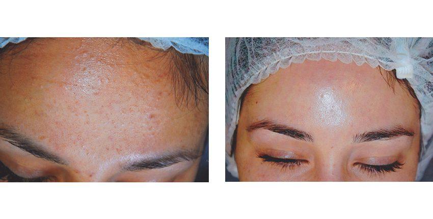Just Skin | Acne